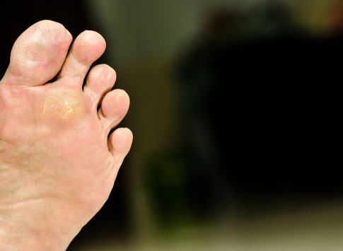 The bottom of a foot with a plantar wart on it,.