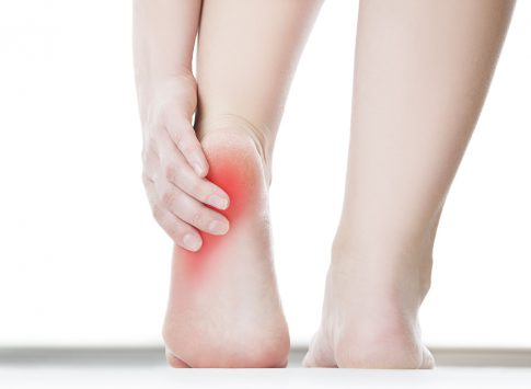 A photograph of a person holding their heel overlaid with illustrated redness (indicating pain/discomfort).