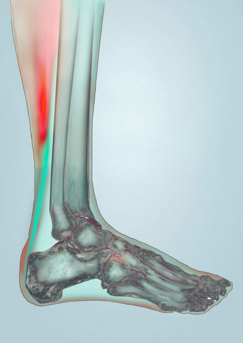 A 3D illustration of the inner structure of a foot.