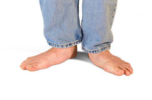A closeup photo of a person's flat feet.