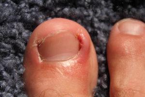 interior-ingrown-toenails-1