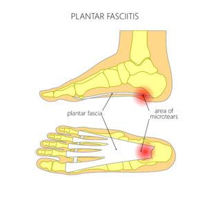 interior-plantar-fasciitis-1