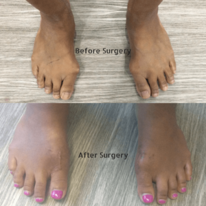 Before and After Picture of Bunion Surgery