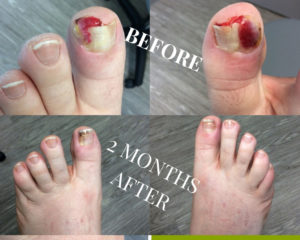 Permanent Ingrown Toenail Removal | Foot and Ankle Wellness Centre