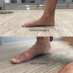 Flat foot reconstruction Surgery